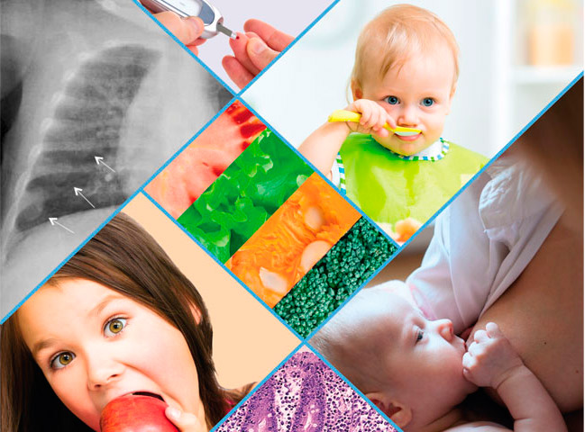 Curso-de-Nutricion-Pediatrica-Online-Seinap